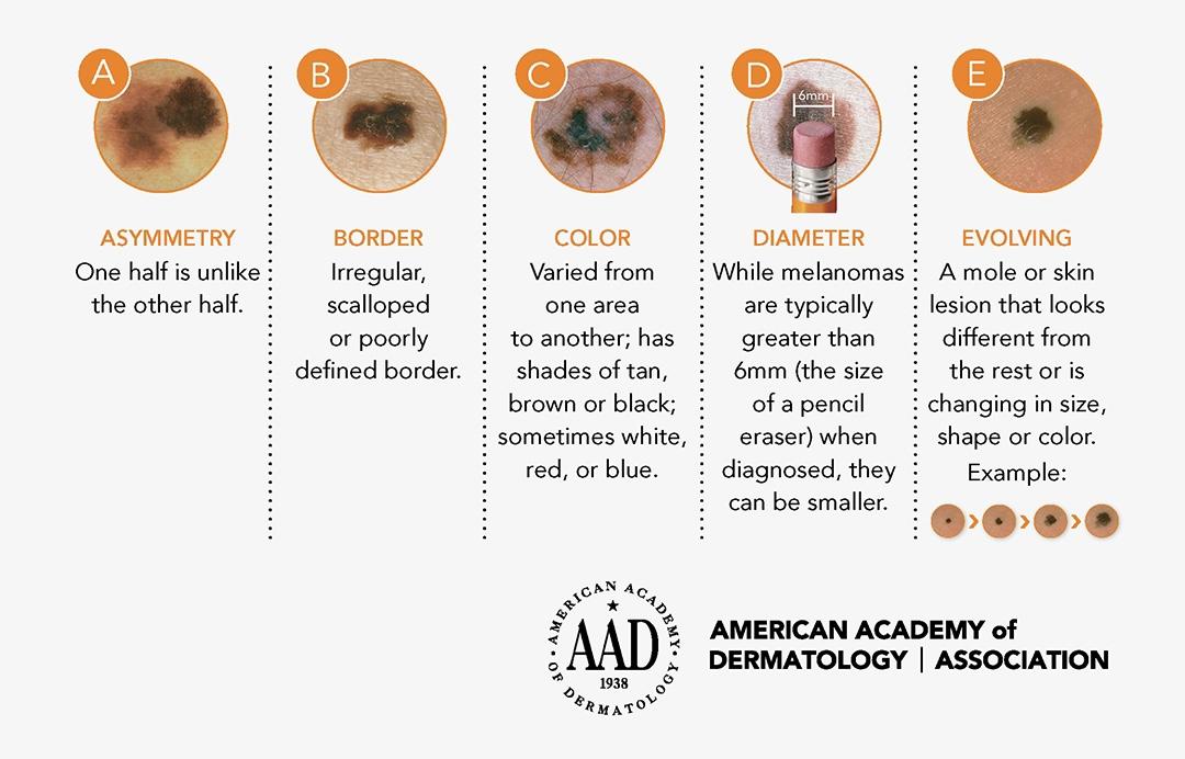 Melanoma Monday - Skin Cancer Awareness Month of May - Susong Dermatology