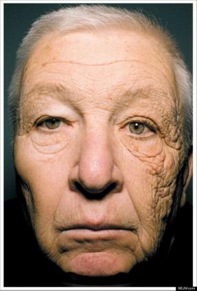 UVA Skin Damage - Truck Driver's Face - NEJM.com